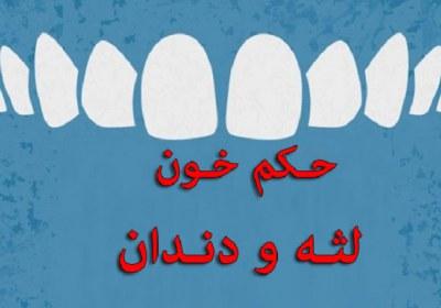 خون، لثه، دندان